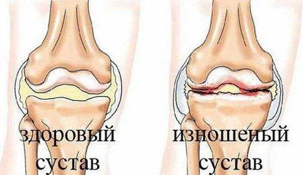 болезнь артроз склероз