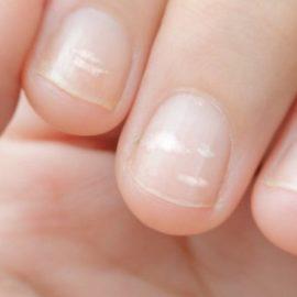 Белые пятна на ногтях. Что они означают и не опасны ли они для здоровья?